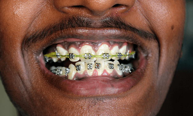 cost of dental braces in south africa